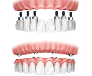 implantes dentales sevilla